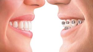 invisalign-vs-braces[1]